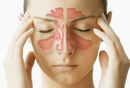 Sinus Congestion is a symptom of seasonal allergies
