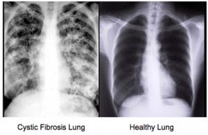 Cystic fibrosis and acupuncture amaluna acupuncture