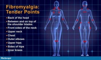 Treating Fibromyalgia with Acupuncture | Amaluna Wellness