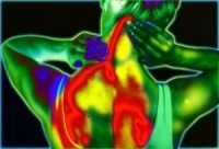 fibromyalgia thermography pain image of upper back